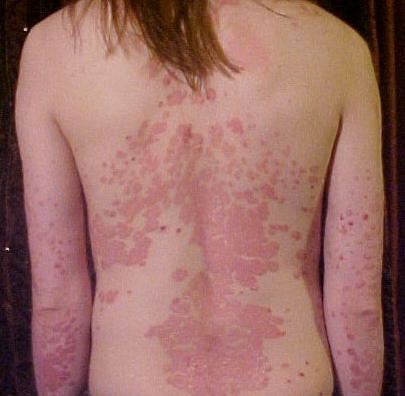 a womans naked back and the back of her arms covered in psoriasis